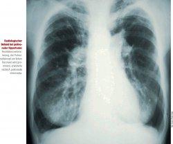 Radiologischer Befund bei pulmonaler Hypertonie: Rechtsherzverbreiterung, der Pulmonalisknopf am linken Herzrand wird prominent, erweiterte rechte A. pulmonalis intermedia. Foto: Science Photo Library