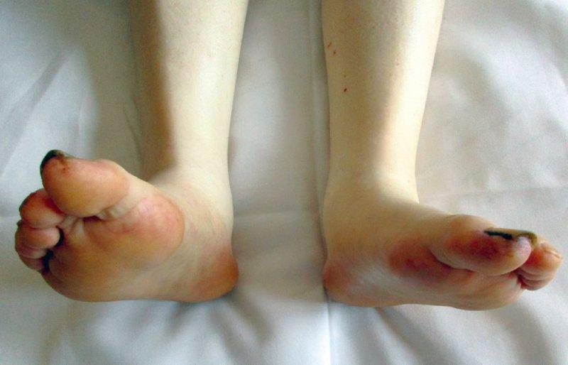Cholesterinembolie-Syndrom