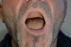 Eine scheinbare Zungenschwellung