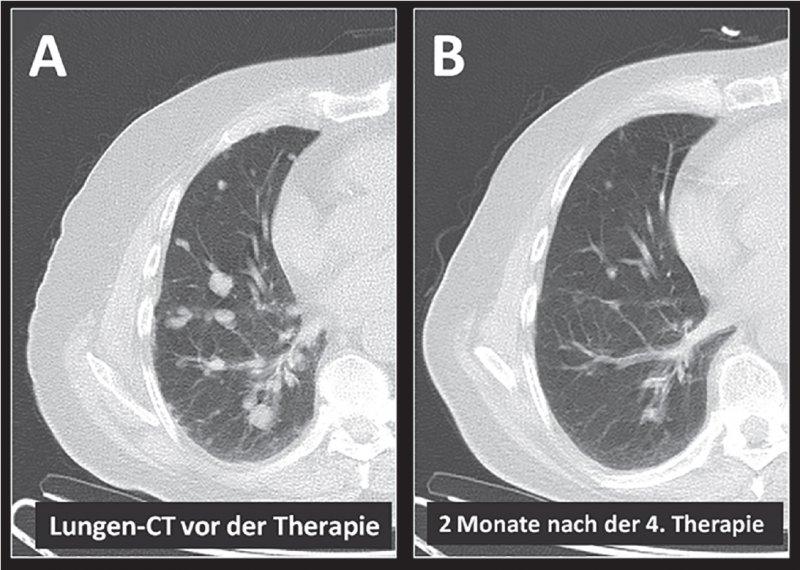 Computertomographie eines Patienten mit einem metastasierten Prostatakarzinom: Die zahlreichen Lungenmetastasen im Ausgangs- PET/CT (A) zeigen eine deutliche Größenabnahme 2 Monate nach Abschluss der 4 Zyklen PSMA-Therapie (B). Fotos: Universitätsklinikum Bonn Klinik für Nuklearmedizin