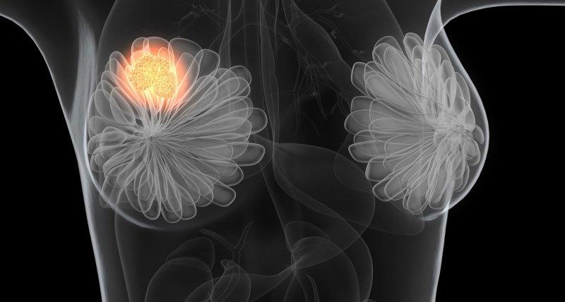 Gewichtsabnahme nach der Menopause könnte vor Brustkrebs schützen