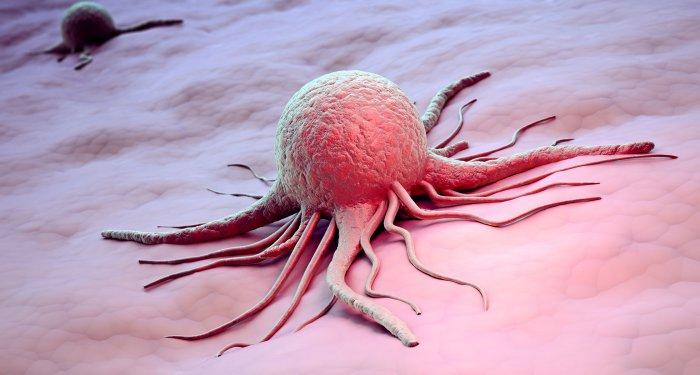 Kleinwuchs: Mecasermin fördert auch das Wachstum von gutartigen und bösartigen Neoplasien