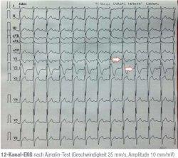 12-Kanal-EKG