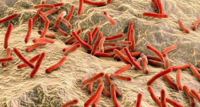Neues Testverfahren zur Resistenzbestimmung bei Tuberkulose