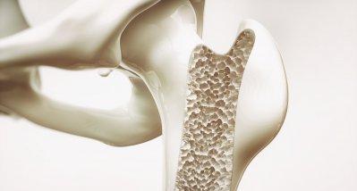 EPIC-Studie: Vegetarische und vegane Ernährung könnte Knochenbruchrisiko erhöhen