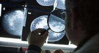 Sterblichkeit wegen Brustkrebs bei älteren Frauen in Deutschland höher als in den USA