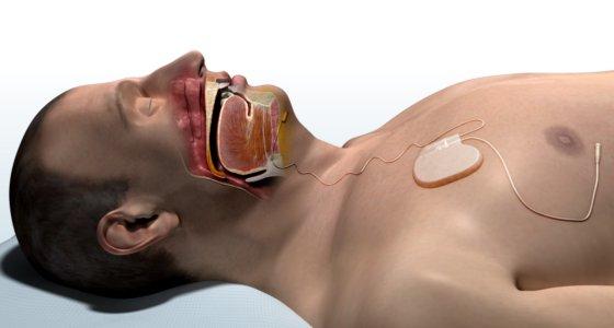 Die Komponenten der oberen Atemwegsstimulation bestehen aus dem implantierbaren Pulsgenerator, einer Stimulationselektrode und einer Detektionselektrode.  /Inspire medical