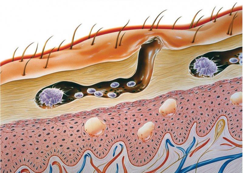Die weibliche Krätzmilbe gräbt einen Gang in die Hornschicht der Haut und legt dort ihre Eier, aus denen die nächste Milbengeneration schlüpft. Foto: Science Photo Library/Bavosi, John