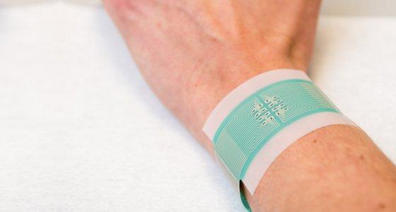 Blutzuckertest der Zukunft? Nicht-invasives Pflaster misst Blutzucker über die Haut. /University of Bath