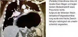 (Partieller) Enterothorax links mit Upside-Down-Magen und begleitendem Mediastinalshift sowie Pneumonie rechts.