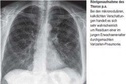 Röntgenaufnahme des Thorax p.a.