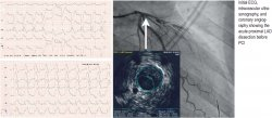 Initial ECG, intra vascular ultra - sonography, and coronary angiography showing the acute proximal LAD dissection before PCI