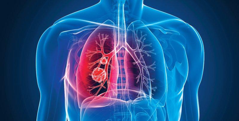 Zu den Empfehlungen der Leitlinie gehört unter anderem eine frühzeitige palliativmedizinische Versorgung bei nicht heilbarem Lungenkarzinom. Foto: Sebastian Kaulitzki/stock.adobe.com