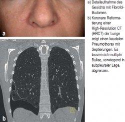 Detailaufnahme des Gesichts mit Fibrofollikulomen