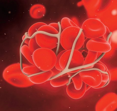 Orale Antikoagulation bei chronischer...