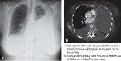 a) Röntgenaufnahme des Thorax mit Nachweis eines mutmaßlichen ausgeprägten Pleuraerguss auf der linken Seite; b) Computertomographie eines massiven Enterothorax statt des vermuteten Pleuraergusses