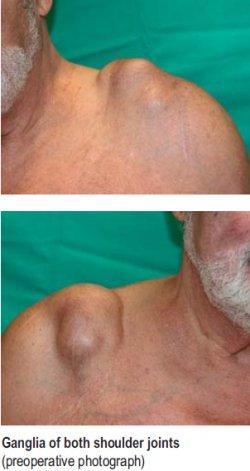 Ganglia of both shoulder joints