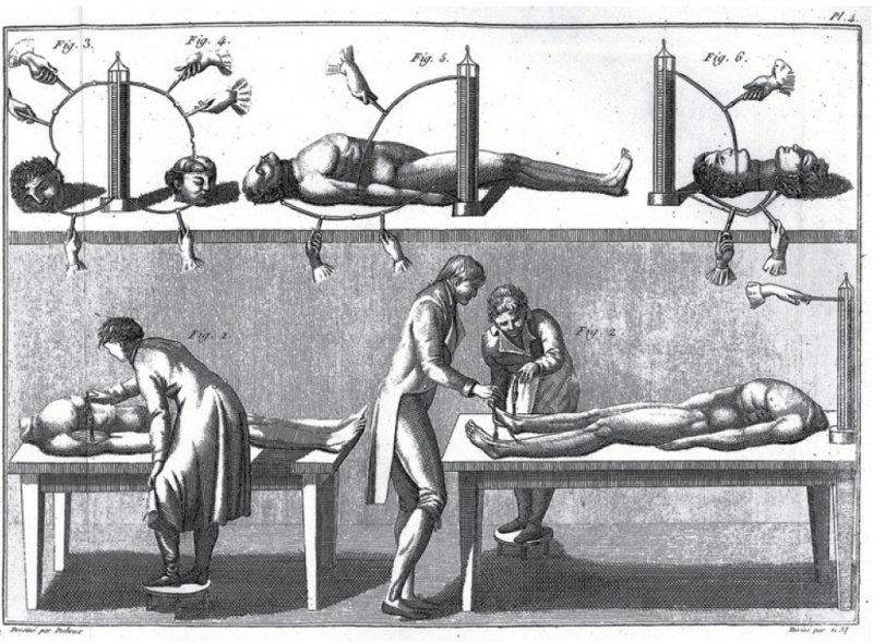 Giovanni Aldini: Theoretisch praktischer Versuch über den Galvanismus, Leipzig 1804. Foto: Bayerische Staatsbibliothek