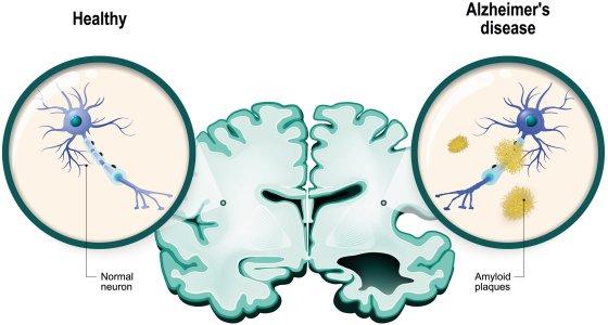 Amyloid-Plaques im Gehirn von Alzheimer-Patienten werden als Aß detektiert im PET-Scan oder als Aß42 im Liquor oder als Aß42/Aß42 Verhältnis. /designua stock.adobe.com