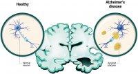 Fehlerhafte Proteinfaltung als Alzheimer-Risikomarker besser als Apolipoprotein-E-Genvariante