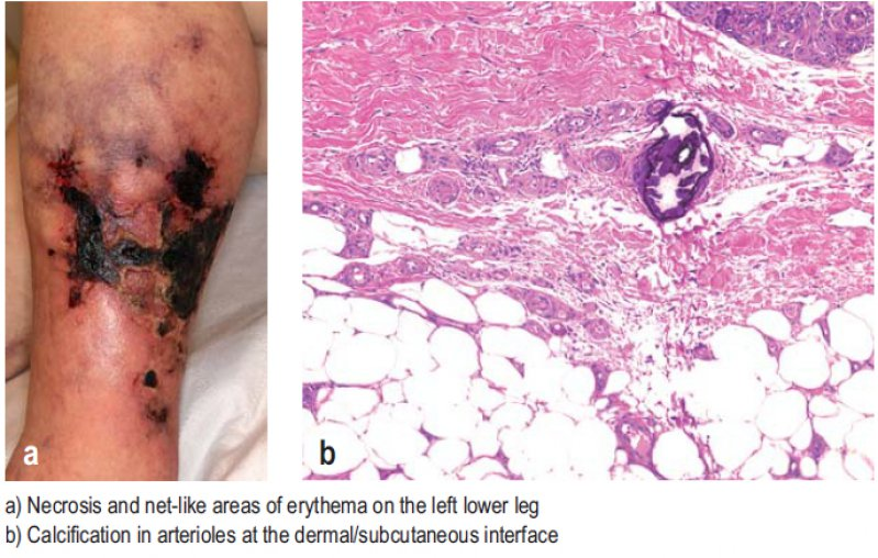 a) Necrosis and net-like areas of erythema on the left lower leg; b) Calcification in arterioles at the dermal/subcutaneous interface