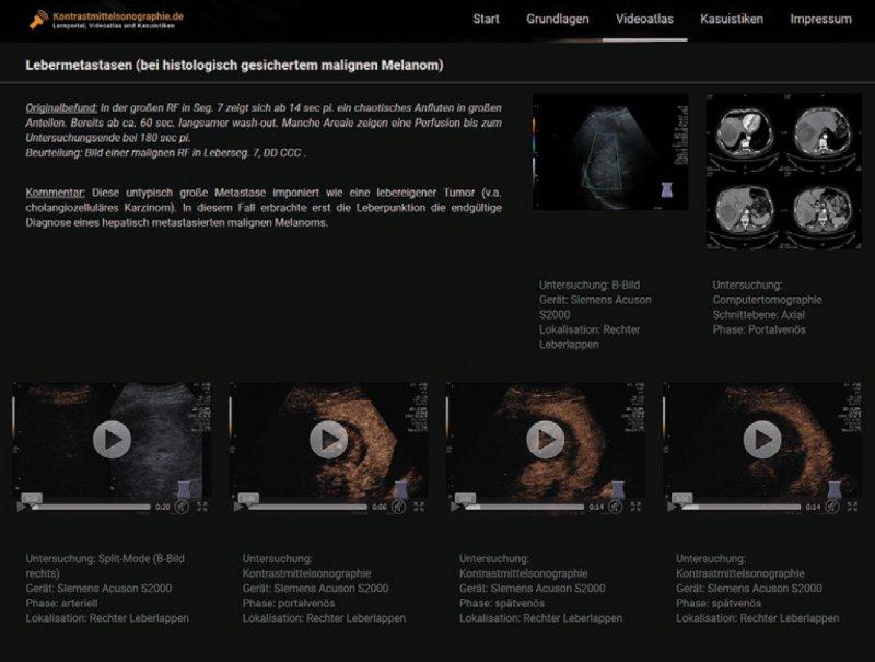 Die Webseite bietet neben Hintergrundwissen auch einen Videoatlas pathologischer Befunde und regelmäßig aktualisierte Kasuistiken.