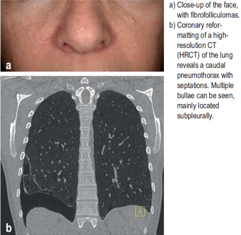 a) Close-up of the face, with fibrofolliculomas; b) Coronary reformatting of a highresolution CT (HRCT) of the lung reveals a caudal pneumothorax with septations. Multiple bullae can be seen, mainly located subpleurally.