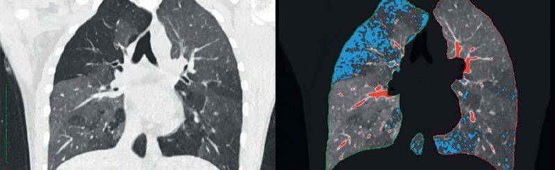"""Ein reguläres CT bei COPD (links) mit darübergelegtem qCT (rechts). Die blauen Areale stellen die """"gefangene"""" Luft dar. Die roten Abschnitte zeigen lediglich Gefäße ohne pathologischen Wert. Foto: Joshua Gawlitza, Universitätsmedizin Mannheim"""
