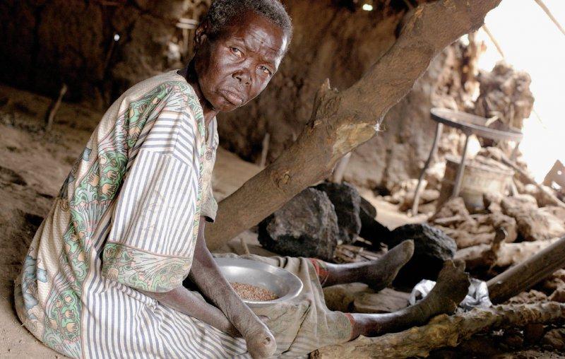 Lepra gehört zu den vernachlässigten Tropenkrankheiten (NTD). Insgesamt sind dies parasitäre, bakterielle oder virale Infektionen, die in 149 Ländern endemisch auftreten und für die es zu wenige Medikamente gibt. Foto: laif