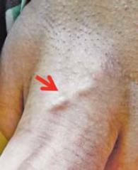 Peniler Morbus Mondor durch May-Thurner-Syndrom getriggert