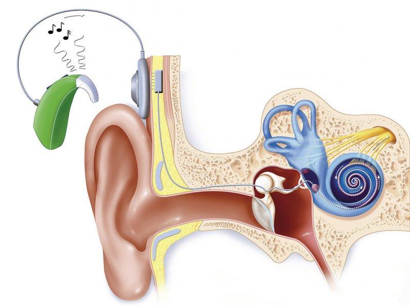 Cochlea-Implantate ermöglichen es hochgradig schwerhörigen oder tauben Menschen, Töne und Sprache wahrzunehmen. Foto: mauritius images/BSIP/JACOPIN