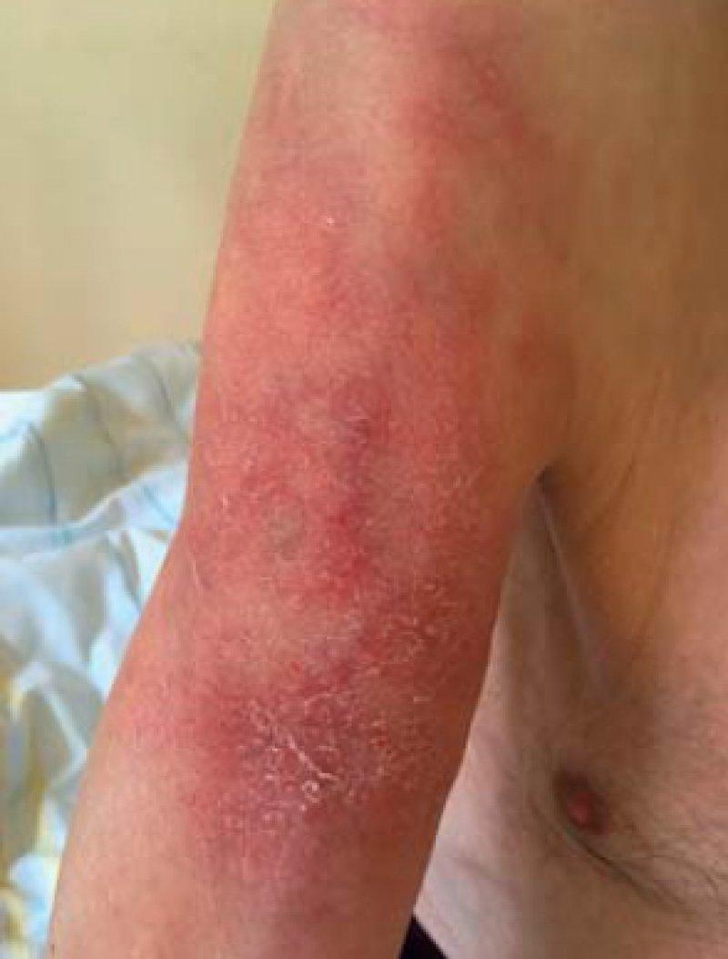 Tuberculosis Cutis Luposa (Lupus Vulgaris)