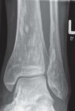 Arthralgia and an Unusual Radiological Finding