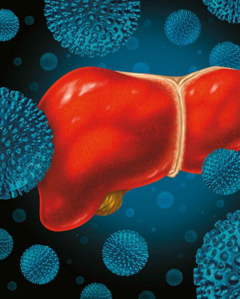 Ein an Hepatitis C erkrankter Mann aus Aserbaidschan hat Anspruch auf eine antivirale Therapie.