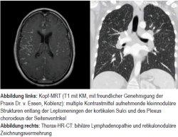 Abbildung links: Kopf-MRT (T1 mit KM, mit freundlicher Genehmigung der Praxis Dr. v. Essen, Koblenz): multiple Kontrastmittel aufnehmende kleinnoduläre Strukturen entlang der Leptomeningen der kortikalen Sulci und des Plexus choroideus der Seitenventrikel. Abbildung rechts: Thorax-HR-CT: bihiläre Lymphadenopathie und retikulonoduläre Zeichnungsvermehrung