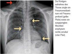 Die Röntgen - aufnahme des Thorax zeigte ein Pneumomediastinum mit Pneumoperikard (gelbe Pfeile) sowie ein ausgeprägtes Weichteil - emphysem rechts zervikal (roter Pfeil).