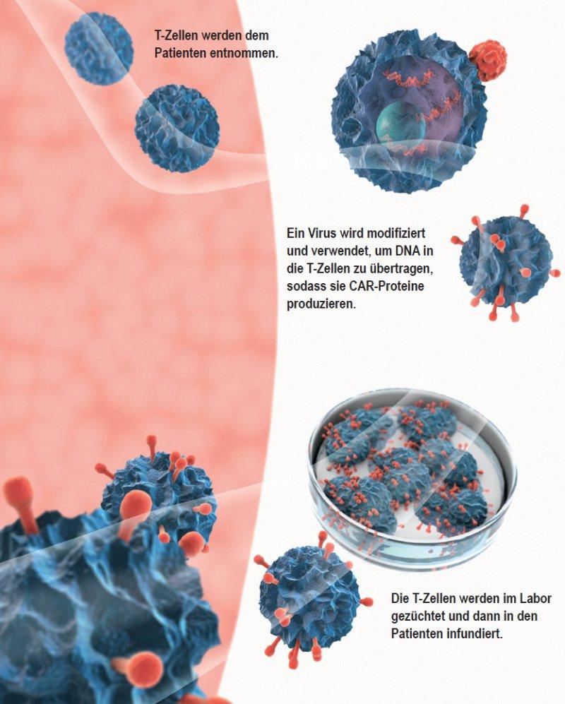 Schema der Vorgehensweise bei einer CAR-T-Zell-Therapie. Foto: Science Photo Library Elam, Gunilla