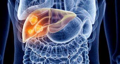 Hämochromatose: Genetische Anlage verzehnfacht Leberkrebsrisiko (nur) bei Männern