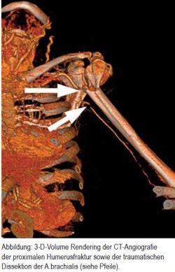 3-D-Volume Rendering der CT-Angiografie der proximalen Humerusfraktur sowie der traumatischen Dissektion der A.brachialis (siehe Pfeile)