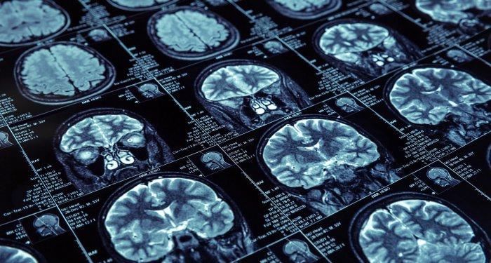 Wie NMDA-Rezeptorinhibitoren im Gehirn wirken