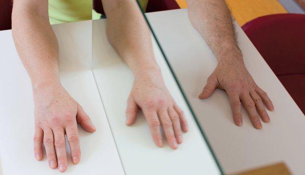 Abbildung 1: Spiegeltherapie nach Ramachandran: Die gesunde rechte Hand wird gespiegelt, das Spiegelbild wird vom Gehirn als linke Hand wahrgenommen. Foto: Dr. med. Andreas Böger