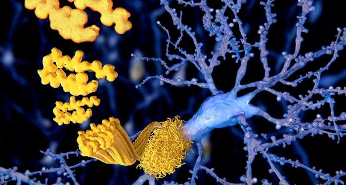Analphabeten erkranken häufiger an Demenz
