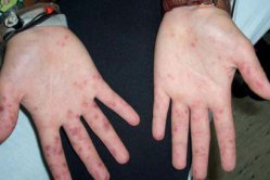Secondary Syphilis Without Any History of Primary Infection