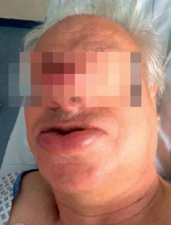 Angioödem zwei Wochen nach Erstgabe eines ACE-Hemmers