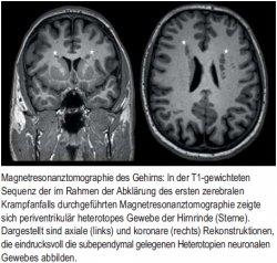Magnetresonanztomographie des Gehirns
