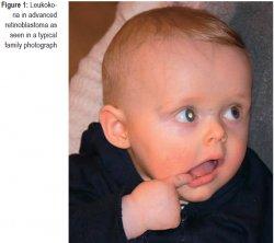 Leukokoria in advanced retinoblastoma as seen in a typical family photograph