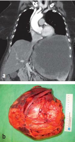 A Rare Cause of Splenomegaly