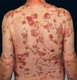 Leukaemia cutis