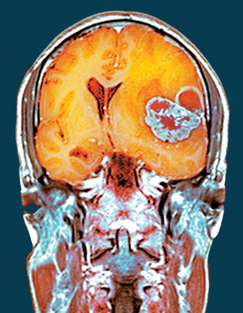 Immer mehr Hirntumorpatienten fordern bei ihren Ärzten Methadon zur Therapie ein. Bei welchen Tumorarten es unter welchen Voraussetzungen wirkt, versuchen Forscher aus Ulm, München und Heidelberg zu klären. Foto: Science Photo Library/Du Cane Medical Imaging Ltd