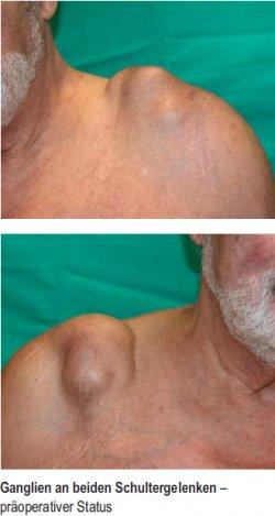 Ganglien an beiden Schultergelenken – präoperativer Status